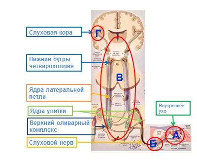 Рисунок 4. Поражение звуковоспринимающего аппарата возникает при поражении внутреннего уха (А), слухового нерва (Б), подкорковых структур слухового анализатора (В) и слуховой коры (Г).