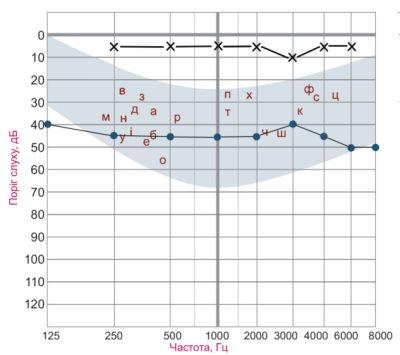Рисунок 3. Пороговая тональная аудиограмма при поражении звукопроводящего аппарата. Пороги слышимости костнопроведенных тонов не нарушены. Пороги слышимости воздушнопроведенных звуков до 40 – 50 дБ. Между порогами слышимости костно- и воздушнопроведенных звуков имеется существенная разница – костновоздушный интервал. Условные обозначения: х – пороги слышимости костнопроведенных звуков, - пороги слышимости воздушнопроведенных звуков.