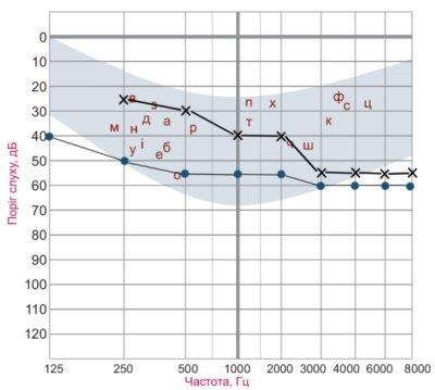 Рисунок 7. Тональная пороговая аудиограмма при комбинированной тугоухости. Пороги слышимости костно- и воздушнопроведенных тонов нарушены в разной степени. Пороги слышимости костно-проведенных тонов в диапазоне частот 250 – 2000 Гц ниже чем в норме, но выше чем пороги слышимости воздушно-проведенных звуков. В этом частотном диапазоне имеется костно-воздушный интервал. Условные обозначения те же, что и на рисунке 3.