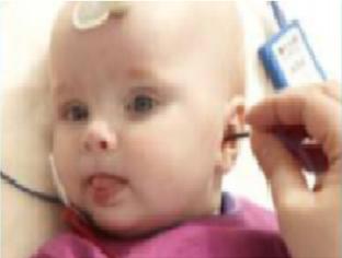 Фото 5. Введение аудиометрических ушных вкладышей внутриушного телефона для проведения обследования КСВП у младенца (фото компании Интеракустикс, Дания).