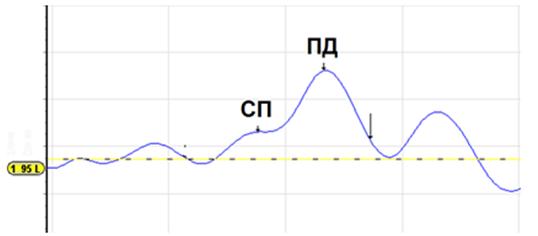 Рисунок 2. Компоненты ЭКоГ в ответ на щелчок уровнем 95 дБ нПС: СП – суммационный потенциал улитки, ПД – потенциал действия слухового нерва. Зарегистрировано авторами прибором Vivosonic Integrity™.