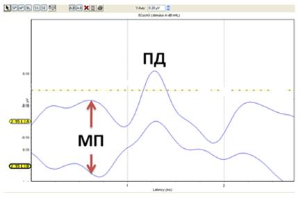 Рисунок 1. ЭКоГ нормально слышащего уха при стимуляции щелчком уровнем 95 дБ нПС. МП – микрофонный потенциал. ПД – потенциал действия слухового нерва. Видно, что при щелчке сгущения (верхняя кривая) и разрежения (нижняя кривая) МП меняет направление (скриншот авторов).