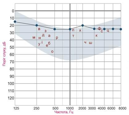 Рисунок 3. Пороги слышимости воздушно-проведенных тонов при минимальной степени снижении слуха.