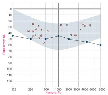 Рисунок 5. Пороги слышимости воздушно-проведенных тонов при средней степени снижении слуха.