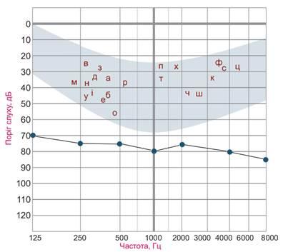 Рисунок 7. Пороги слышимости воздушно-проведенных тонов при глубокой степени снижении слуха.