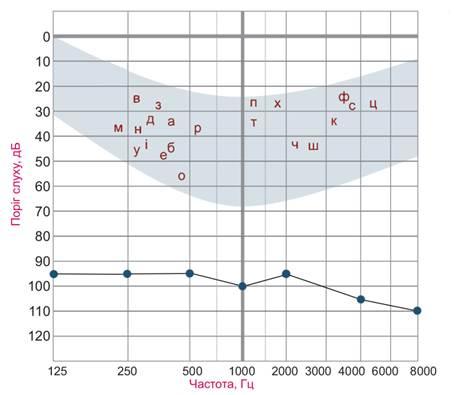 Рисунок 8. Пороги слышимости воздушно-проведенных тонов при глухоте.