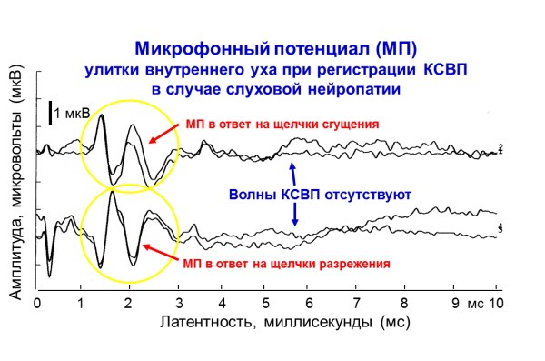 Рисунок 2.Микрофонный потенциал (МП), зарегистрированный у ребенка со слуховой нейропатией при регистрации КСВП. Регистрируется микрофонный потенциал (МП) улитки внутреннего уха, а волны КСВП не регистрируются. Адаптировано Е.В. Соколовой из Guidelines for Cochlear Microphonic Testing. Ver. 2.0. 20 Sept. 2011. NHSP Clinical Group.