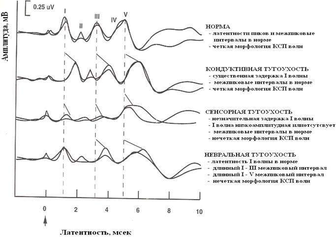 Рисунок 5. Морфология КСВП ответов при различных нарушениях слухового анализатора. Адаптировано Е. Соколовой из источника: Jay W. Hall (2007). New Handbook of Auditory Evoked Responses.