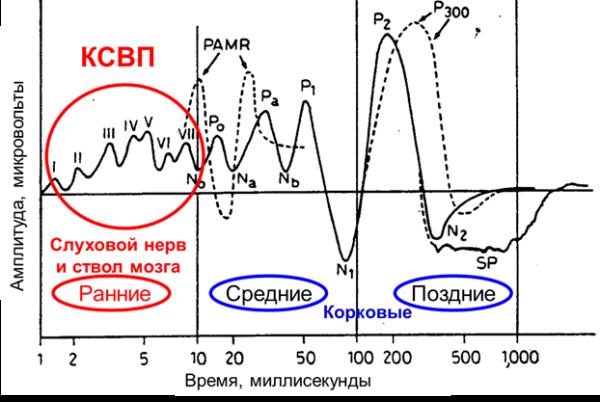 Рисунок 1. Расположение электродов: мастоид – вертекс – висок (нейтральный). Усреднение 1000 ответов. Адаптировано Ю. Соколовым из источника: Jon Shallop (1983). Electric Response Audiometry: The Morphology of Normal Responses.