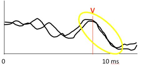Рисунок 7. Присутствие пика (волны) V КСВП свидетельствует о нормальном слухе (рисунок авторов).